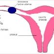 Qu'est-ce qu'une grossesse extra utérine?