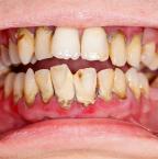 La parodontite, une inflammation des tissus de soutien de la dent qui peut entrainer d'autres maladies graves