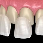 Facettes dentaires en Hongrie, prix, remboursement et nombre de rendez-vous nécessaire